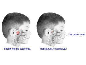 Preprečevanje bolezni