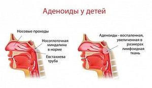 Zdravljenje adenoidov