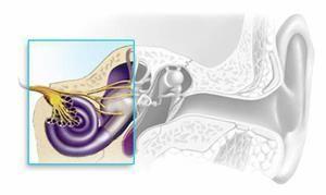Kako se razvije senzoričnauralna gluhost