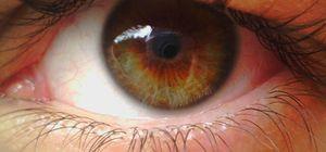 Kako zdraviti distrofijo očesa