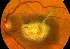 Ponavljajoče se spremembe očesne mrežnice