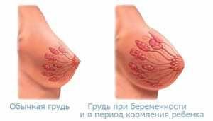 Prsi v nosečnosti