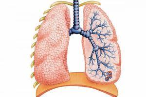 Vzroki akutnega bronhitisa