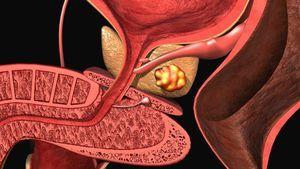 Vzroki za računalni prostatitis: glavni simptomi in zdravljenje