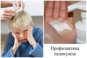 Kako zdraviti pedikulozo pri otroku