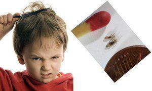 Glavni vzroki za pedikulozo