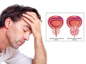 Bolezni prostate: simptomi